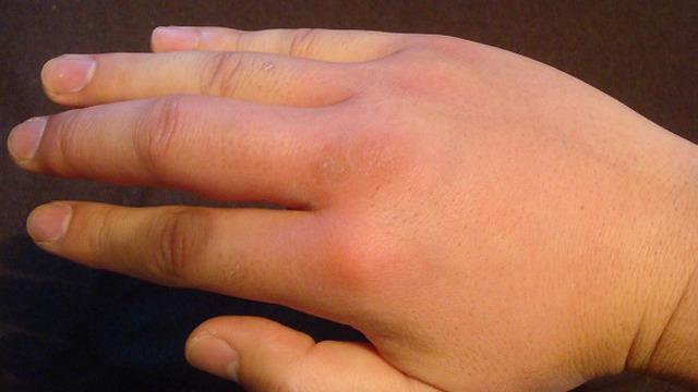 感動の代償はパンパンに腫れあがった右手。