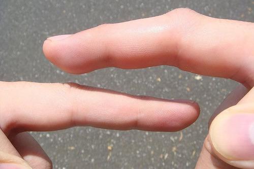 毒にやられて腫れあがった右手中指(上)。左手(下)と比べると一目瞭然。