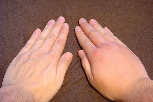 翌日には腫れが手の甲全体に広がった。