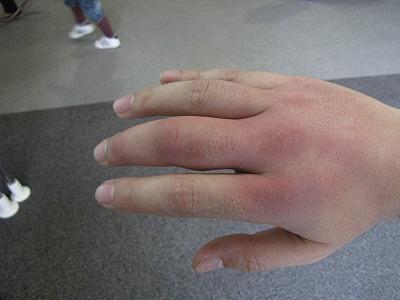 応急処置をしたにもかかわらず、刺された右手は翌日にはパンパンに腫れあがった。