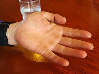 樹さんの手を見せてもらったら、働き者の手でした。