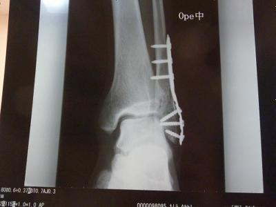 骨折部分が埋まり、金具が入りました