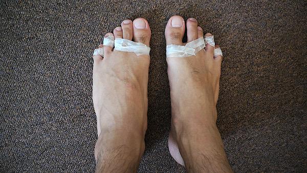 ちなみ私の足はこんな状態だった(マメが7個できて、爪が一枚はがれかけている)