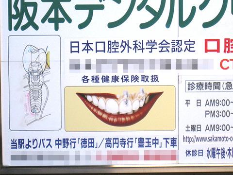 こちらはインプラント(差し歯)が透けてる、一部レントゲン透視歯列。
