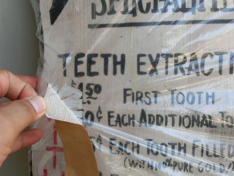 「TEETH EXTRACTIONS」は「抜歯」の意味。抜歯料金表だ。