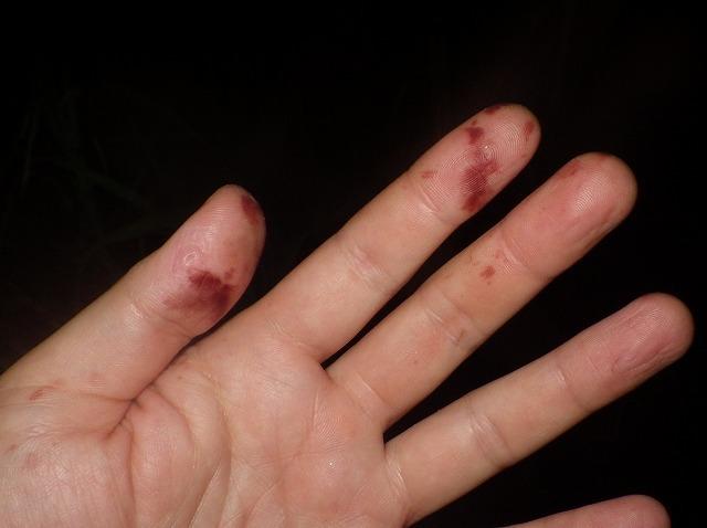 オナラを浴びた指先の皮膚が変色している!!
