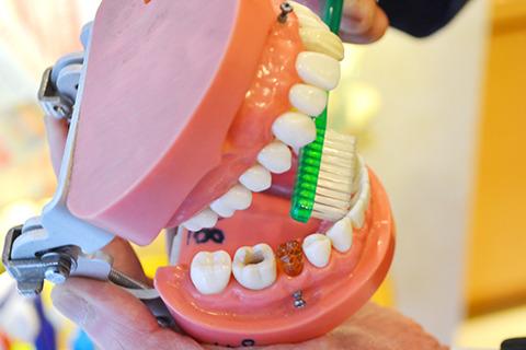 普通の歯ブラシだと、前歯の裏が磨きにくい。