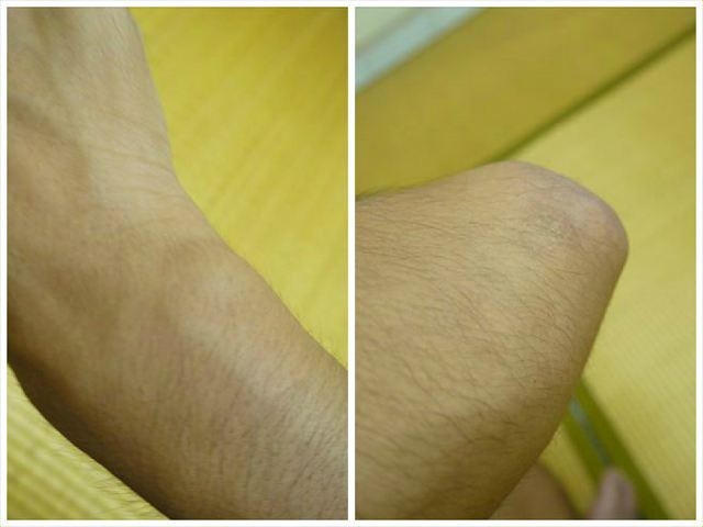 ほかにもある古傷。左手首はもう「くすみ」に近い。