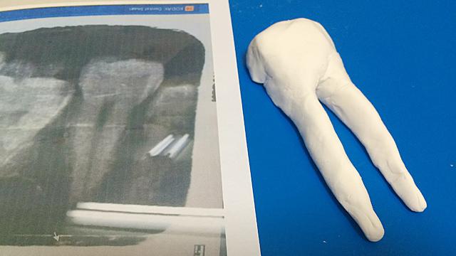 セクシー歯の写真をプリントアウトし、それを見ながら紙粘土で作ってみる