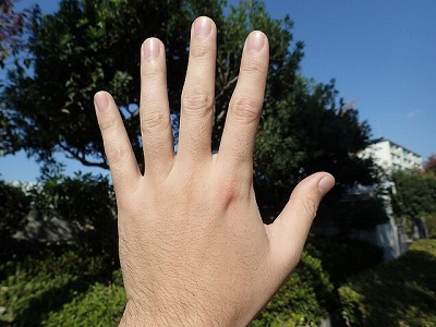 患部は人差し指の付け根。見た目はほんのり赤くなった程度だが…。