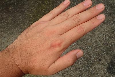セアカゴケグモの場合と同じように患部がほんのり赤くなる。