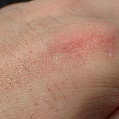 よく見ると蚊に刺されたように小さく腫れている