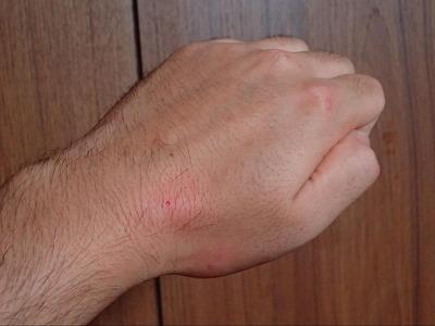 やはり多少痛痒いだけ。オオジョロウグモよりは強かったが、大差なし。