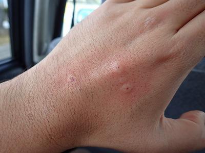 いたずらすると、本来は獲物を捕まえるための麻酔&消化液を針のような口で注入される。最初は痛くて、だんだん激しい痒みに変わる。辛い。