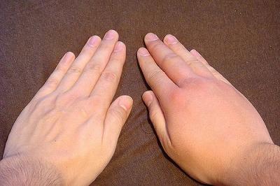 刺された右手と無事な左手の比較。パンッパンでしょ?