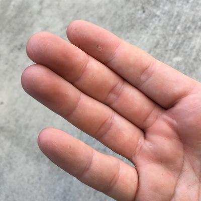 切断する際に触手が何度か指の腹に張り付いてしまったが、炎症や痛みが生じることは無かった。どうやら、指や手のひらは皮が分厚いので刺胞が貫通できないらしい。