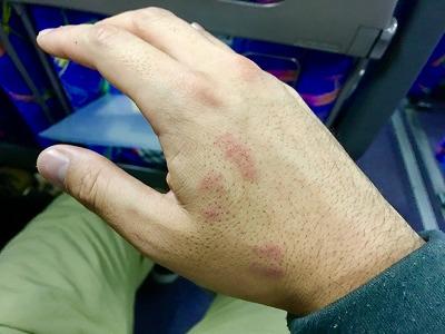 噛みつかれて手がキスマークまみれに…。けっこう痛い。