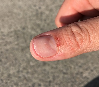 下顎を掴んで持ち上げたらがっつり指を噛まれて血が滲んだ。痛かった。