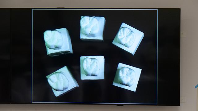 これが奨励賞6名による「よくできた歯」の数々。すごい……優劣がわからない!